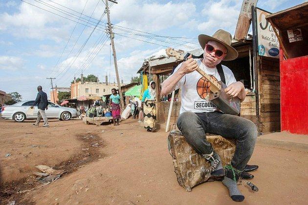 """Au Malawi, un """"fils"""" de Salif Keita au service de la cause albinos"""