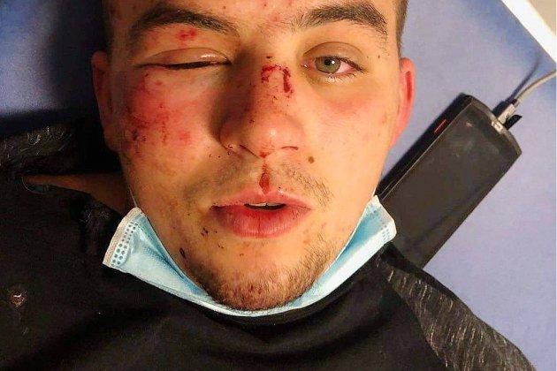 Appel à témoins après une agression devant un bar, rue de Bras