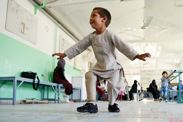 En Afghanistan, le sourire d'Ahmad, amputé de 5 ans, émeut le pays