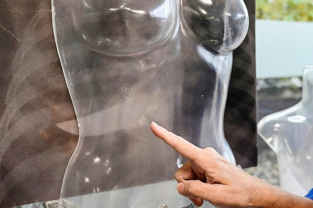 A Milan, l'exposition choc d'un hôpital pour dénoncer les violences faites aux femmes