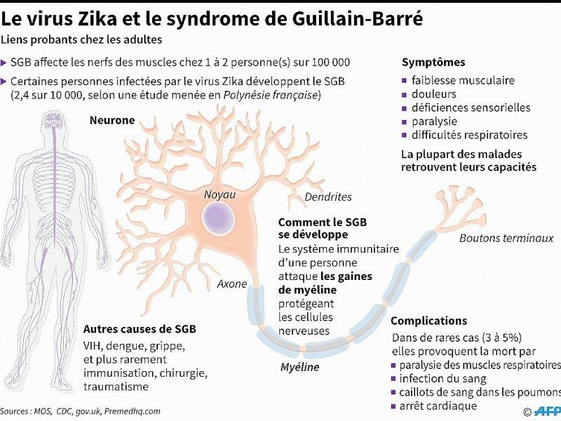 Le virus Zika et le syndrome de Guillain-Barré - John SAEKI, Laurence CHU [AFP]