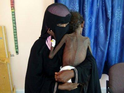 Une photo prise le 22 novembre 2018 montre une mère yéménite Nadia Nahari tenant son fils de cinq ans Abdelrahman, qui souffre de malnutrition sévère et pèse cinq kilos, dans une clinique dans la ville de Khokha, dans la province de Hodeida dans l'ou - - [AFP]