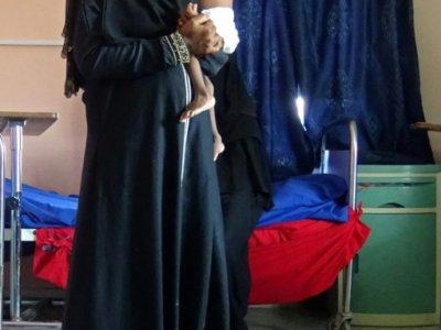 Une femme yéménite tient dans ses bras son enfant qui souffre de malnutrition et attend un traitement médical dans une clinique du village d'Al-Moutaynah, dans l'ouest du Yémen, le 29 novembre 2018    - [AFP]