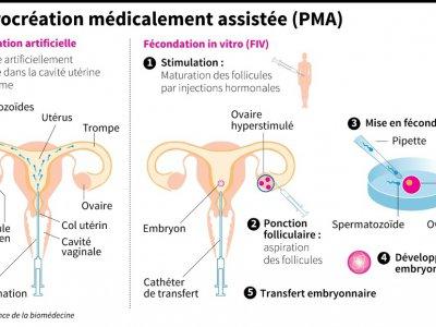 La procréation médicalement assistée - Paz PIZARRO [AFP]